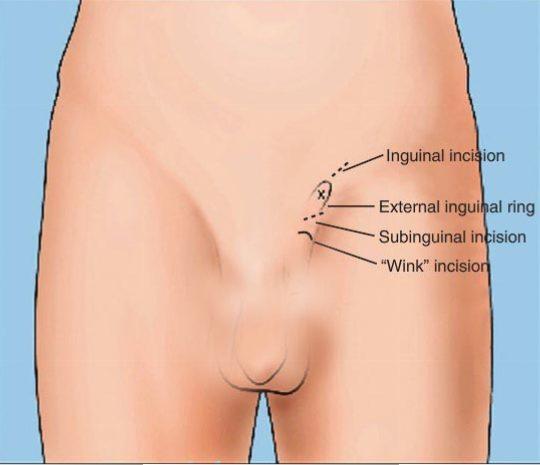 جراحی واریکوسل یا واریس بیضه به روش میکروسکوپی