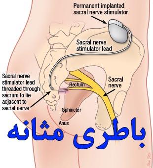 تعبیه باطری مثانه (SNM)