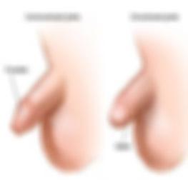 ختنه و تنگی خروجی ادرار کودکان (Circumcision & Meatal Stenosis)