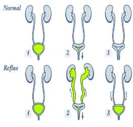 برگشت ادرار از مثانه به کلیه (Vesico Ureteral Reflux-VUR)